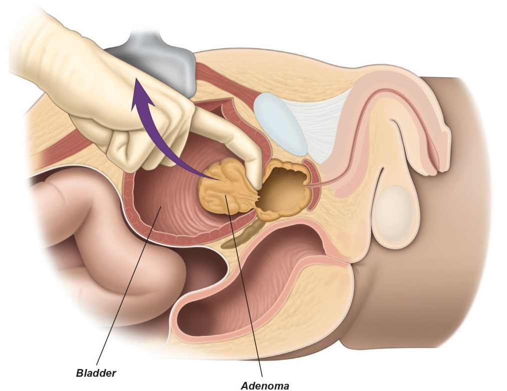 What Is Prostatectomy Learn About The Treatment For Prostate